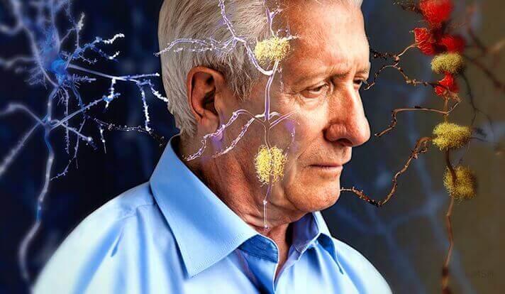 Mann med faresignaler på Alzheimers