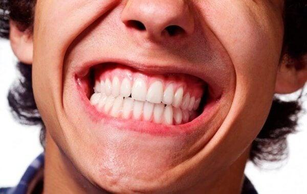 En mann som lider av tanngnissing