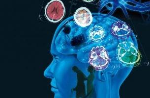 Multippel sklerose: Årsaker, symptomer og behandling