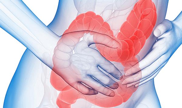 Irritabel tarmsyndrom, eller IBS.