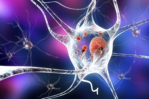 tidlig utbrudd Parkinson er på cerebralt nivå