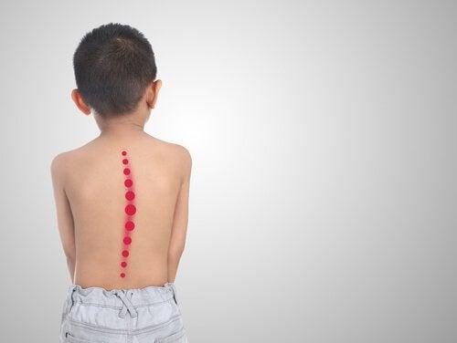 Barn med skoliose
