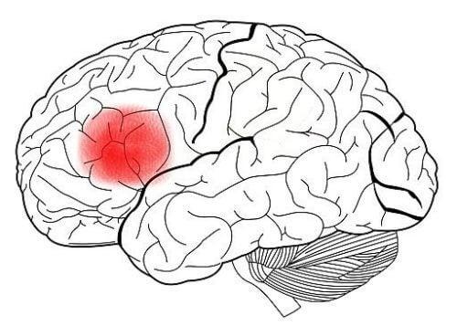 hjerne med broca-området uthevet i rødt