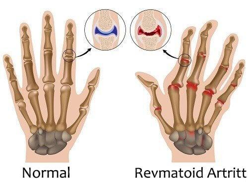 Revmatoid Artritt