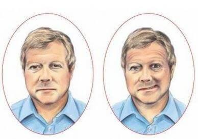 hjerneslagoffer med et asymmetrisk ansikt