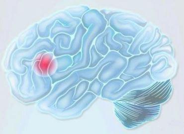 Hjerne lider av et hjerneslag