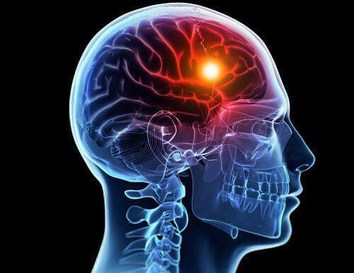 Ulike årsaker til og typer av hjerneslag