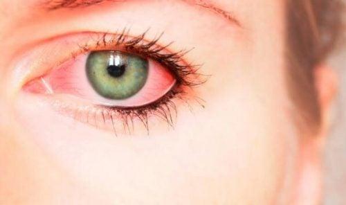 Det er flere ideer som handler om hvorvidt røde øyne kan være et spor psykisk vold etterlater på kroppen