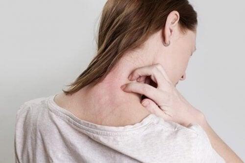 Kvinne klør seg på nakken der hun har et utslett. Kanskje et tegn på somatiske følelser.