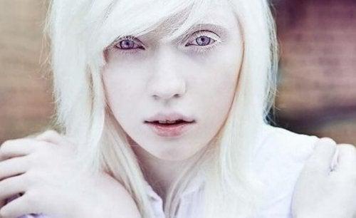 Å leve med albinisme: Utover fysisk utseende