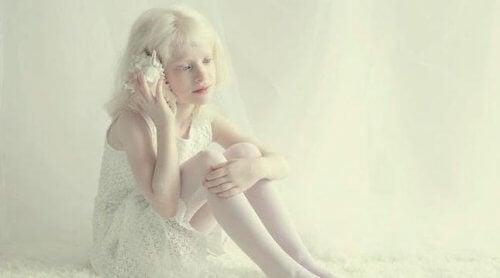 Liten jente med albinisme.