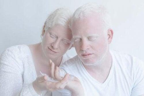 Par som lever med albinisme.