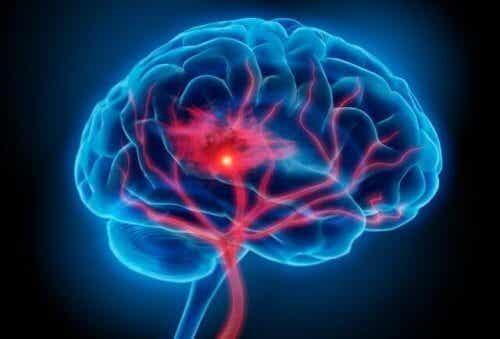 Symptomer og behandlinger for serotoninsyndrom