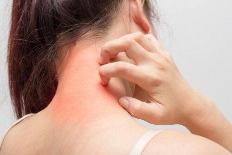 Atopisk dermatitt manifesterer seg ofte på leddene