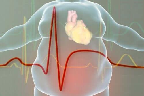 overvektige mennesker har større sannsynlighet for hjerteproblemer