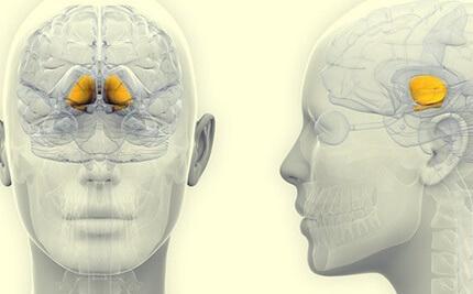 En illustrasjon som fremhever basalganglier i hjernen, en av hoveddelene som progressiv supranukleær parese påvirker.