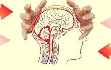 Oppdag hvordan bekymring påvirker hjernen din
