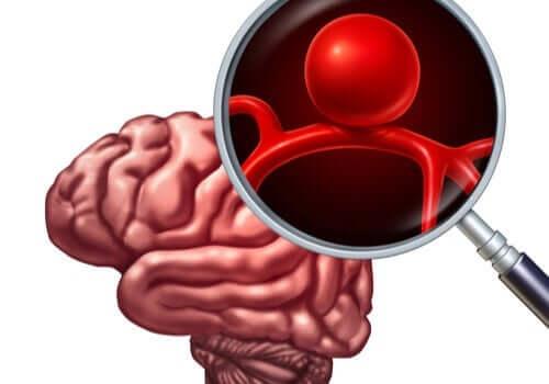 En utposning på blodårene i hjernen kalles en intrakranial aneurisme.