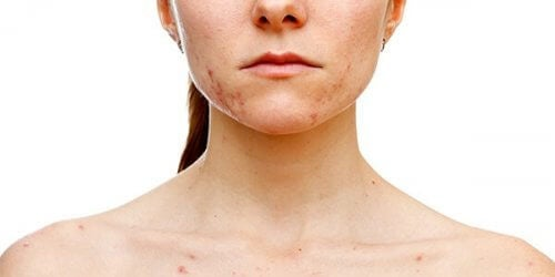 En form for pigmentflekker på hude kan oppstå som et symptom på polycystisk ovariesyndrom.