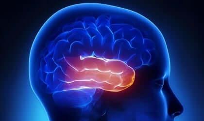 Bildet av hjernen der tinningslappen er fremhevet