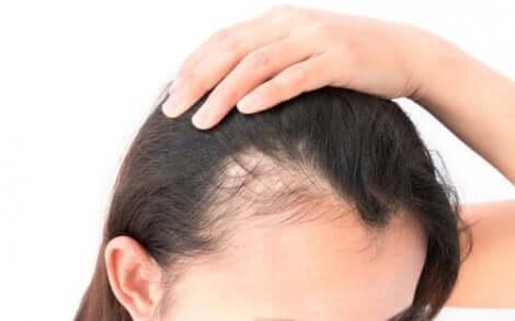 I de vanligste formene for alopecia hos kvinner, vil hårfestet forbli uberørt av tilstanden.