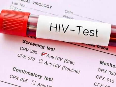 Verdens AIDS-dag ønsker å spe kunnskap, s¨vel som å få folk til å teste seg, slik at de kan begynne behandling så tidlig som mulig.