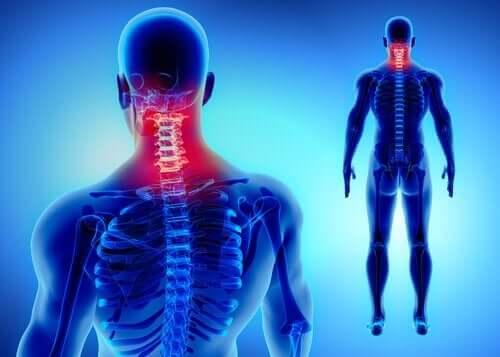 Symptomer på nakkesleng inkluderer muskelsmerter.