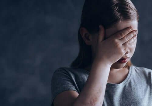 Psykiske lidelser: Fysisk og mental helse