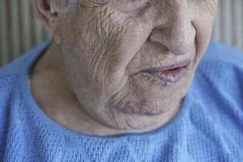 Ansiktslammelse: Årsaker og behandlinger