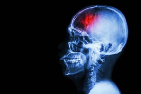 En CT-skanning av hjernen etter hjerneslag.