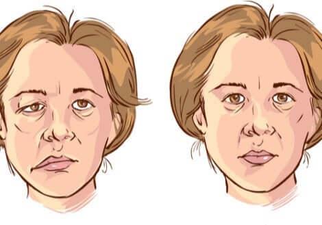 En illustrasjon av en kvinne med ansiktslammelse.