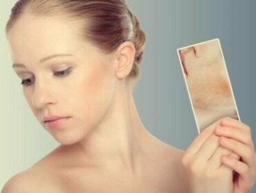 Stressutslett og -kviser: Når huden din reagerer på følelsene dine