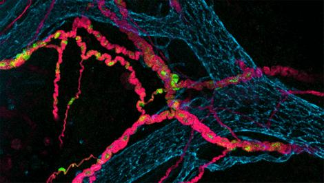 Nevroner i tarmen.