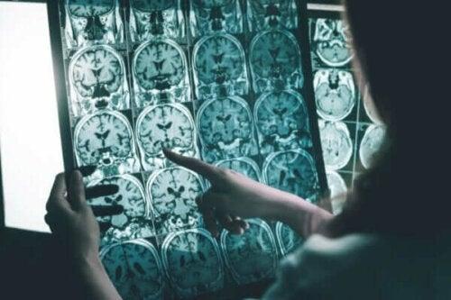 Hjernebølgestimulering for mennesker med Alzheimers