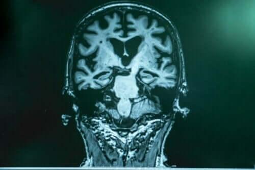 Røntgen av hjerne.