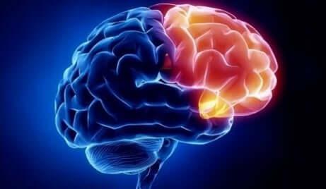 Et bilde av en hjerne som viser området for skyld i rødt.
